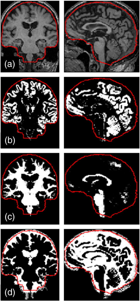Illustration of SPM12 tissue segmentation results and manually edited intracranial mask: (a) Original T1-weighted MRI [miriad_188],5 (b) grey matter, (c) white matter, (d) cerebrospinal fluid; overlaid on each image in red is a contour showing the outline of the intracranial mask after inverse spatial normalisation (i.e. warping from MNI to native space). It can be seen in (d) that the mask excludes some voxels incorrectly segmented as the CSF, and in (c) that the mask achieves a consistent anatomically-defined inferior cut-off, independent of the acquired field-of-view.