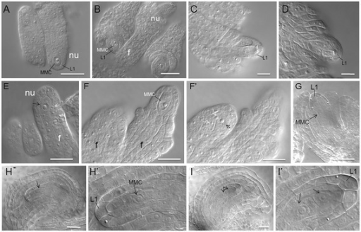 Early ovule development is disrupted in 35S:NTAP:AtCTF7∆B plants. Wild type (A-D) and 35S:NTAP:AtCTF7∆B (E-I ) ovules were analyzed by differential interference contrast microscopy. (A) Pre-meiotic ovule containing a single megaspore mother cell (MMC; stage 1-II). (B) Pre-meiotic ovule at stage 2-III. Inner and outer integuments start to initiate. (C) Meiotic ovule containing a dyad after meiosis I (stage 2-IV). (D) Meiotic ovule containing a tetrad after meiosis II. (E-F) 35S:NTAP:AtCTF7∆B ovules at pre-meiotic stages. (E) Right ovule containing an abnormal, enlarged cell (white arrow) adjacent to a MMC-like cell (black arrow). Adjacent ovules are different in size. (F-F') Left ovule containing two abnormal, enlarged cells (white arrows) adjacent to a MMC-like cell (black arrow). Ovules are different in size and stage (left: stage 1-II, right: stage 2-III) and point in the same direction. (G-I) 35S:NTAP:AtCTF7∆B ovules at meiosis. (G) Ovule containing a large cell with prominent nucleus (arrow) resembling a MMC. An extra cell is present at the position of the degenerated megaspores, between the MMC and L1 cells. (H) Ovule containing a MMC-like cell with a prominent nucleus in the central region of the ovule. Ovule is enlarged and extra cells are between the MMC and L1 cells. (H') Magnified view of MMC from H. (I) Ovule containing two cells with prominent nuclei (arrows) in the central region of the ovule. The two cells are separated and resemble a dyad. Extra cells surround the dyad. (I') Magnified view of I. Size bar = 10 μm. Developmental stages are defined according to Schneitz et al. [32].