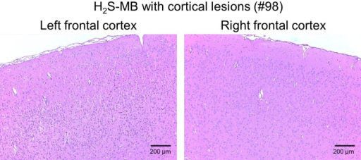 Histology of the frontal cerebral cortex in one rat of the H2S-MB group (#98, see Table 1) that could swim and find the platform.Marked asymmetry of neuronal necrosis in the left hemisphere was found, while the right hemisphere was nearly normal (Bregma 0.0. 40x). All other lesions in this rat (Table 1) were ipsilateral.