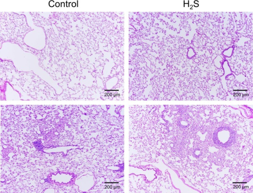 Example of the histopathology of the lung in a control rat and a rat exposed to H2S.Hematoxylin and eosin stained sections of perfused lungs from control and H2S-exposed rats, 100X magnification. Lungs of both rats are normal (top panels) with no evidence of lesions that would be expected to occur during inhaled sulfide exposure. As illustrated on the lower panels, both unexposed controls and H2S exposed rats displayed mild expansion of the peribronchial, peribronchiolar and perivascular interstitium by low to moderate numbers of lymphocytes and macrophages with fewer plasma cells consistent with chronic bronchus associated lymphoid tissue hyperplasia (BALT, see text for additional comments).