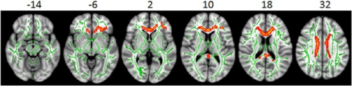 White matter differences between survivors with no radiation treatment and healthy controls.Significant white matter differences between survivors with no radiation treatment (NRT) and healthy controls (HC) were found in the empirically-identified white matter regions from TBSS. White matter skeleton (color coded in green) is overlaid on a T1 weighted image. Clusters of significantly lower fractional anisotropy (FA) for survivor group are in orange and red. No statistically significant correlation between intellectual performance and the white matter FA was found in these areas.