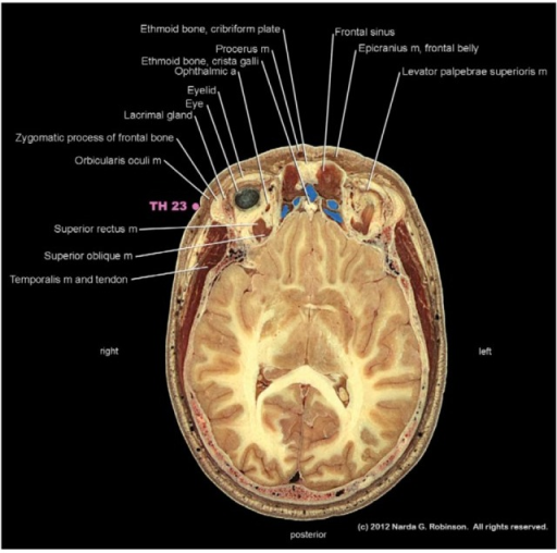 This cross section demonstrates the relationship of acupuncture point TH 23 to the zygomatic process of the frontal bone and the overlying thin layer of orbicularis oculi muscle. The clinical significance of this anatomy pertains to translational safety issues in acupuncture. That is, a human acupuncturist expects to reach bone shortly after penetrating the soft tissues. In contrast, the bony orbit in the dog ends at this site. A needle entering the soft tissue could therefore enter the orbit. (Image courtesy of Narda G. Robinson, DO, DVM, MS and Teton NewMedia. From [17]).