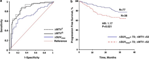 (a) ROC curves for the MTV and ΔSUVmax for predicting PFS. MTV was measured by two different methods, threshold-based using 37% SUVmax as the threshold and gradient-based using the PET Edge software. The software calculates spatial derivatives along the tumor radii and then defines the tumor edge on the basis of derivative levels and the continuity of the tumor edge. All the measurements were performed by a single operator. The thresholds of ΔSUVmax and ΔMTV by ROC curve analysis were 72% and 52%, respectively. ΔMTV predicted PFS better than ΔSUVmax as the AUC for ΔMTV was significantly larger compared with the AUC for ΔSUVmax (AUCΔMTV: 0.713 and AUCΔSUVmax 0.873; P=0.0324). (b) Kaplan–Meier curve for patient who achieved adequate ΔSUVmax reduction (ΔSUVmax >72%) stratified to two groups based on ΔMTV. ΔMTV can predict PFS in a subset of patients who had significant SUVmax reduction on interim PET.