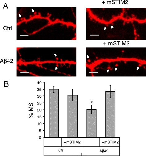 STIM2 overexpression protects mushroom spines from amyloid toxicity in vitro.a Primary hippocampal cultures were co-transfected with TD-Tomato and mSTIM2 plasmids or transfected with TD-Tomato. After transfection cells were treated with Aβ42 oligomers or vehicle (Ctrl). Spine morphology was visualized by confocal imaging. Scale bar corresponds to 5 μm. Mushroom spines are indicated with an arrow. b Percentages of mushroom spines (MS) in hippocampal cultures co-transfected with TD-Tomato and mSTIM2 or transfected with TD-Tomato. Data collected from the three batches of cultures are shown for vehicle treated cultures (Ctrl) and cultures treated with Aβ42 oligomers. For spine quantification n = 6–8 (for each treatment per one experiment) neurons were analyzed. Experiment was repeated three times. Values are shown as mean ± SEM. *: p < 0.05 by t-test