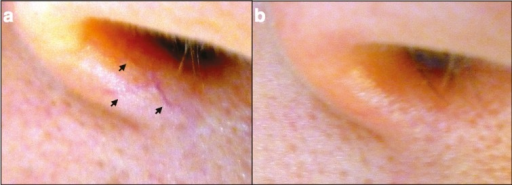 Patient with nose telangiectasias. a) Photos of a patent with spider nose telangiectasia (black arrows); b) Photo of the same patient immediately after the treatment with hand cautery