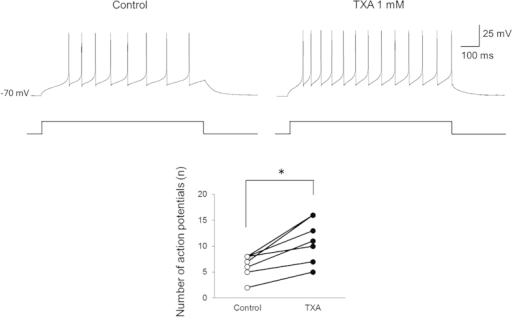 Tranexamic acid (TXA) increases the number of action potentials in dorsal horn neurons.TXA (1 mM) significantly increases the number of action potentials induced by current injection (100 pA, 1000 ms) in all recorded neurons (n = 7). *P < 0.05 by paired t-test.