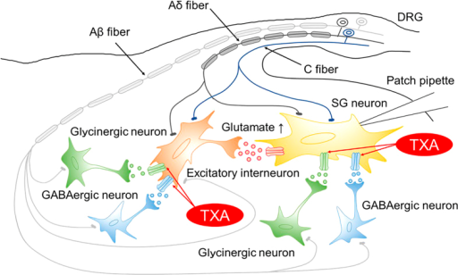 Model of the spinal dorsal horn circuit underlying the mechanism of tranexamic acid (TXA)-produced pain.TXA directly inhibits GABA and glycine receptors located on postsynaptic sites of the recorded SG neurons. TXA also inhibits GABAA and glycine receptors located on postsynaptic sites on excitatory interneurons. This leads to increased glutamate release from the excitatory interneurons to the recorded SG neurons located postsynaptically, resulting in increased spontaneous activity. SG, substantia gelatinosa; DRG, dorsal root ganglion.