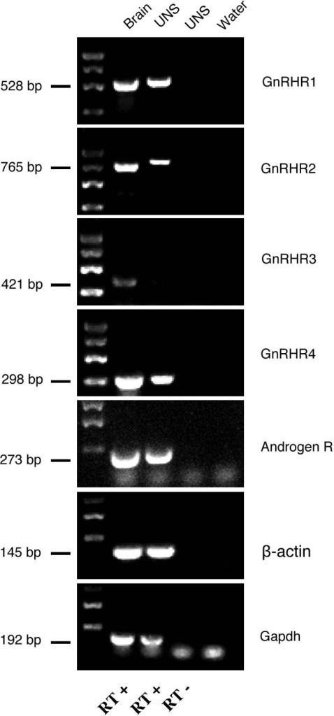 GnRH receptors are expressed in undifferentiated neurospheres. RT-PCR analyses of the four zfGnRHRs and zfAR. All zfGnRHRs are expressed in the brain of adult zebrafish. zfGnRHR1, zfGnRHR2 and zfGnRHR4 are expressed in undifferentiated neurospheres (7 days in vitro). UNS, neurospheres; RT+, positive reverse-transcription; RT−, negative reverse transcription. β-actin and Gapdh: house-keeping genes.