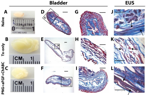 PNG+aFGF+ChABC treatment improves bladder and EUS morphology.(A-C) Gross observation of the bladder at 18 weeks after SCI in naïve (A), TX-only (B), and PNG+aFGF+ChABC animals (C). (D-F) Photomicrographs of transverse bladder sections stained with Masson's trichrome from naïve (D), TX-only (E), and PNG+aFGF+ChABC animals (F). Scale bar, 500μm. (G-I) Higher magnification of photomicrographs from boxed area (D-F) shows details of the bladder structure. Note that PNG+aFGF+ChABC animals showed improved bladder morphology. Sale bar, 250μm. (J-L) Photomicrographs of transverse EUS sections stained with Masson's trichrome from naïve(J), TX-only (K), and PNG+aFGF+ChABC animals (L). The TX-only animals show swelling as well as short and discontinuous muscle fibers (arrow), while the PNG+aFGF+ChABC animals show continuous and long muscle fibers (arrow), similar in morphology to naïve animals (arrow). Scale bar, 500μm.