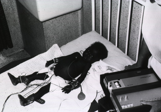 <p>A young boy is lying on a bed; he is connected to an electrocardiograph at the wrists and ankles, as well as an attachment placed on his chest.</p>