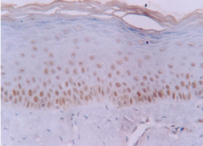Increased labelling of hMSH2 protein in basal and intermediate epithelial layers of normal oral mucosa (streptavidin-biotin amplified system, x 400).