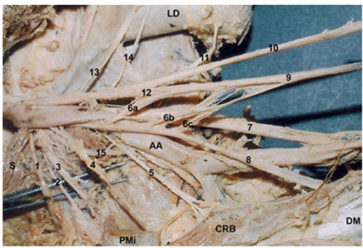Brachial Plexus of the right side of 57 year old male c ...
