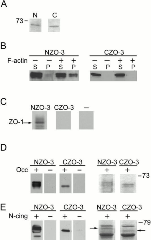 In vitro binding analyses show that NZO-3 binds F-actin and ZO-1 exclusively; both NZO-3 and CZO-3 bind occludin and cingulin. (A) Coomassie blue–stained gel showing the equivalent amounts of NZO-3 (N) and CZO-3 (C) fusion proteins used in all subsequent binding assays. (B) NZO-3 specifically cosediments with actin filaments; CZO-3 does not. Equivalent amounts of NZO-3 or CZO-3 were centrifuged in the presence (+) or absence (−) of F-actin. Stoichiometrically equivalent aliquots of supernatants (S) and pellets (P) were analyzed by immunoblot. NZO-3, but not CZO-3, is found in the F-actin pellet. (C) NZO-3 binds ZO-1; CZO-3 does not. 35S-labeled in vitro–transcribed/translated ZO-1 was incubated with affinity resin containing equal amounts of NZO-3 or CZO-3. The 6-histidine tag plus 36 nonspecific amino acids served as negative control (−). As detected by autoradiogram, ZO-1 is retained by the NZO-3-containing resin and does not bind to CZO-3 or the negative control peptide. (D) Both halves of ZO-3 bind occludin with similar affinity. NZO-3 and CZO-3 were incubated with affinity resin containing immobilized GST-occludin (+), or GST alone (−). Bound protein was eluted with glutathione and analyzed by immunoblot with anti–ZO-3 antibodies (first four lanes) or Coomassie blue staining (last two lanes). Both NZO-3 and CZO-3 are retained by GST-occludin and not by GST alone. The Coomassie blue–stained lanes show that approximately equal amounts of NZO-3 and CZO-3 (arrows) are bound. (E) Both halves of ZO-3 bind to the amino-terminal head region of cingulin. NZO-3 or CZO-3 were added to an affinity column containing the amino-terminal head region of cingulin (N-cing) fused to GST (+) or GST alone (−). Bound fractions were immunoblotted with antibodies specifically recognizing NZO-3 or CZO-3 (first four lanes) or stained with Coomassie blue (last two lanes). Both NZO-3 and CZO-3 are retained on the GST–N-cingulin column but not on GST alone. Coomassie blue staining of the bound fractions shows approximately equal amounts of NZO-3 or CZO-3 (arrows) are bound. The other protein bands visible in the Coomassie blue–stained samples correspond to GST–N-cingulin.