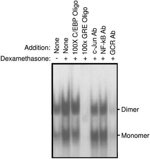 Specificity of electrophoretic mobility shift blot for GCR– GRE interactions using nuclear extracts from a normal subject. The specific monomeric and dimeric GCR–GRE retarded bands are indicated by  arrows. The effect of dexamethasone (1 μM) on the density of the GCR– GRE band is shown at 60 min. Specificity is shown by the inhibitory effect of 100-fold excess of unlabeled oligonucleotide and anti-GCR antibody  on GCR–GRE binding.