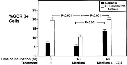 Effect of combination IL-2 and IL-4 on percent GCR-β– immunoreactive cells in PBMCs from normal subjects and GC-insensitive  asthmatics. PBMC from four normal donors and three GC-insensitive  asthma patients were analyzed for GCR-β immunoreactivity as described  in Fig. 5. PBMCs were analyzed for GCR-β immunoreactivity, freshly  isolated (time 0) and after incubation in culture medium or the combination of IL-2 and IL-4 for 48 h.