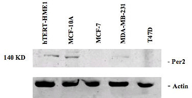 Expression of PER 2 in human breast epithelial and breast cancer cell lines. Total cellular protein was isolated from two immortalized human breast epithelial cell lines (HME-tert and MCF-10A), two ERα-positive human breast tumor cell lines (MCF-7 and T47D lines) and one ERα-negative human breast tumor cell lines (MDA-MB-231 line). One hundred micrograms of total cellular protein from each cell line was separated by 10% polyacrylamide gel electrophoresis and subjected to Western blot analysis using an antibody directed against the human PER 2 protein.