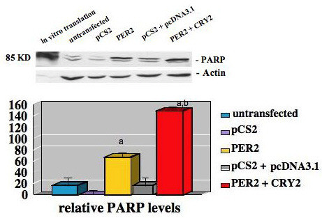 PER 2 expression induces apoptosis in MCF-7 breast cancer cells. (A) MCF-7 cells were transiently transfected with empty vector, vector expressing PER 2, or both vectors expressing PER 2 or CRY 2. After 72 hours, total cell extracts were prepared and subjected to Western blot analysis using an antibody directed against the 85 kDa cleaved fragment of PARP [poly (ADP-ribose) polymerase] (representative of three independent studies). (B) Densitometric analysis of cleaved PARP protein (average value of three independent studies). a. PER 2 or PER 2 + CRY 2 vs vector control, p < 0.001, b PER 2 + CRY 2 vs PER 2, p < 0.01