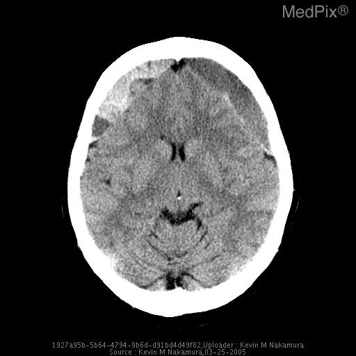 Noncontrast CT of the brain demonstrates bilateral acute-on-chronic subdural hematomas. The higher density collections generally correspond to the acute portions of the hemorrhage. However, patients on anticoagulant therapy may completely lack the ability to form a clot, which is the hyperdensity we see on CT.  In these patients, the acute portion of the hemorrhage may be hypodense.
