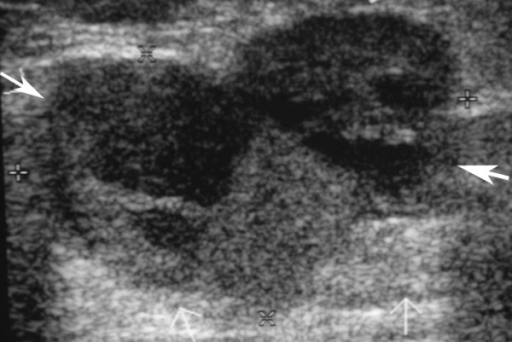 The corresponding breast ultrasound of the patient in Figure 1 shows a lobular mass at left lower breast, measuring about 3.1 × 2.1 cm in diameter with heterogeneous echogenicity (arrows).