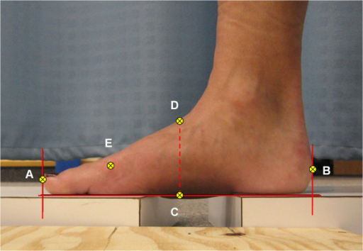 Digital photographic image used to calculate FL, TFL and AH. Lines were drawn on the image indicating the distal end of the hallux, the most posterior aspect of the posterior heel, and the horizontal supporting surface. The co-ordinates A-E were digitized and used to calculate the foot measurements. The horizontal distance between A and B gave FL. Point C was placed at the horizontal midpoint between A and B. The vertical distance between C and D represents AH. The horizontal distance between B and E yielded the TFL.