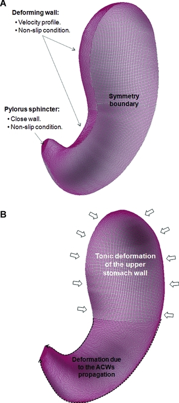 Boundary conditions. (A) Boundary types. (B) Deformation of stomach walls.