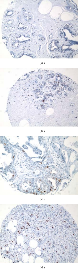 Immunohistochemical expression of TOP2A protein. (a) Histologically normal breast tissue from a reduction mammoplasty (RM) case featuring lack of nuclear expression of TOP2A in the epithelial cells lining a normal TDLU. (b) Histologically normal breast tissue from a patient with synchronous breast cancer showing positive nuclear staining in 4-5% of the mammary epithelial cells-higher TOP2A expression than the HNB tissues from a reduction mammoplasty case illustrated in (a). (c-d) A larger proportion of epithelial cells are immunoreactive for nuclear TOP2A protein in ductal carcinoma in situ (DCIS) and in the invasive ductal carcinoma (IDC) infiltrating the mammary fat. These cases illustrate an obvious increase in TOP2A protein expression from the lowest risk specimen from a reduction mammoplasty case (a), to the higher-risk specimens (c) and (d) (IMPOX staining for TOP2A; original magnifications 200x).