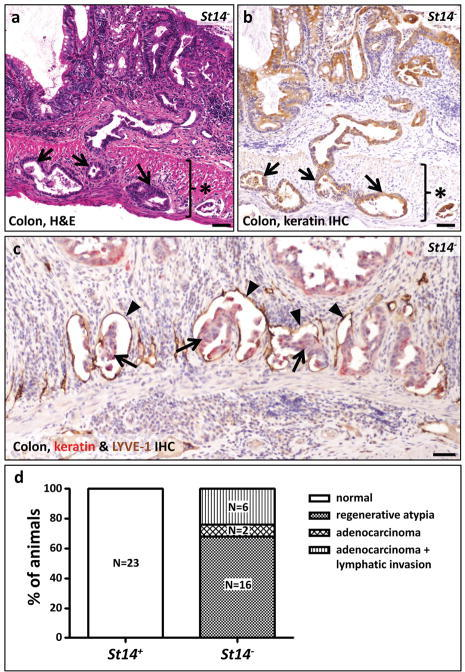 Rapid and spontaneous malignant transformation of St14-ablated colonic epithelium(a) Representative example of adenocarcinoma in the large intestine of an eight week old St14− mouse. Tumor cells invading the muscularis externa (star) are shown with arrows. (b) The epithelial origin of the tumor cells invading the muscularis externa (star) is demonstrated by immunohistochemical staining for keratin (examples with arrows). (c) Combined immunohistochemical staining for keratin in red (examples with arrows) and the lymphatic vessel marker LYVE-1 in brown (examples with arrowheads) shows invasion of malignant cells into lymphatic vessels of a seven week old St14− mouse. Scale bar for a, b, and c = 100 μm. (d) Enumeration of colonic lesions in four to 18 week old St14+ (left) and littermate St14− mice (right), showing adenocarcinoma with lymphatic invasion in 6, adenocarcinoma without lymphatic invasion in 2, and regenerative atypia in the remaining 16 St14− mice. See Table 1 for additional details.