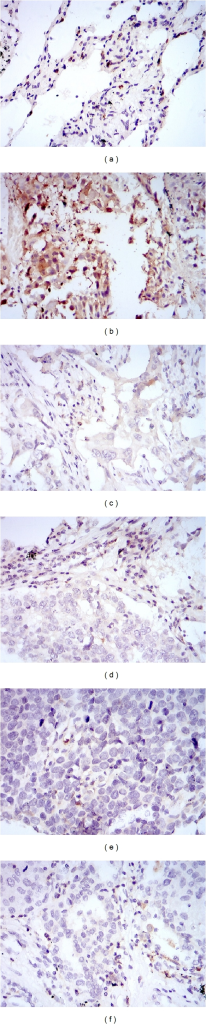 Immunohistochemistry staining in tissue chip of S100A8 protein expression in lung cancer tissue and normal tissues ((a) normal lung tissue, (b) lung squamous cell carcinomas, (c) metastatic carcinoma, (d) adenocarcinoma, (e) small cell carcinoma, (f) large cell carcinoma tissues).