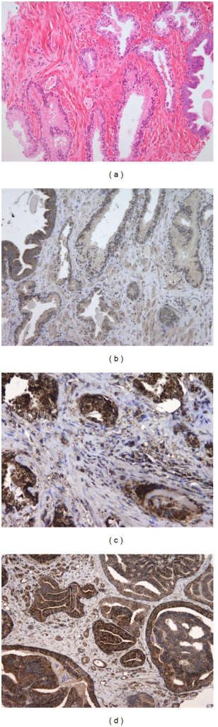 (a) Glands lined with hyperplastic epithelium and PIN (hematoxylin and eosin staining, 100x). (b) MMP-2 and MMP-9 immunohistochemistry indicates weak or negative expression in hyperplastic epithelium, except for the PIN, where the expression is strong (100x). (c) MMP-9 immunoexpression in moderately differentiated prostate cancer. Note the intense staining in the cytoplasm of tumor cells and the strongly positive reaction in the cytoplasm of stromal cells (200x). (d) MMP-2 immunoexpression in poorly differentiated prostate cancer. Note the strong cytoplasmic staining intensity (200x).
