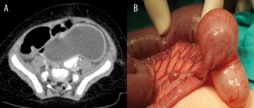 Patient M.G., history of constipation. (A) Contrast-enhanced CT: tubular ileal duplication cyst located close to the ileocaecal valve. (B) Intraoperative image.