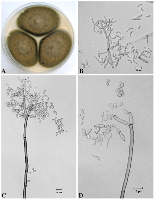 Morphological features of Cladosporium cladosporioides cultured on MEA medium.A: Fungal colonies on MEA medium, B: Branched ramoconidia and chains of conidia, C: Ramoconidia and dense conidia on the tip of a conidiophore, D: Oval to spherical conidia and separated ramoconidia with a dark scar at one end or both ends.