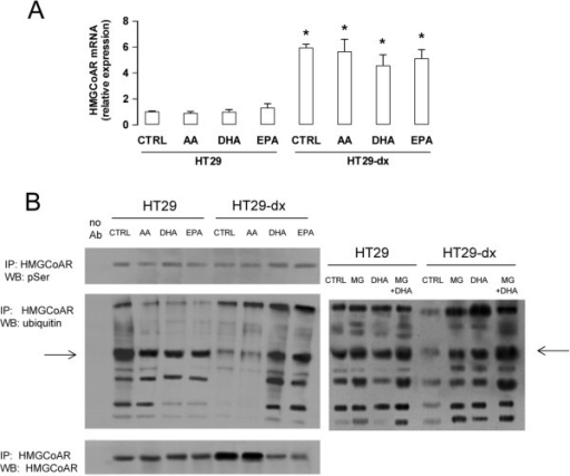 Effects of ω3PUFAs on HMGCoAR transcription, phosphorylation and ubiquitination in colon cancer cells. HT29 and HT29-dx cells were incubated for 24 h in the absence (CTRL) or in the presence of 50 μM arachidonic acid (AA), docosahexaenoic acid (DHA), eicosapentaenoic acid (EPA). (A) Total RNA was extracted, reverse-transcribed and subjected to qRT-PCR for HMGCoAR gene. Measurements were performed in triplicate and data are presented as means ± SD (n = 3). Versus CTRL HT29: * p < 0.005. (B) Cells were subjected to ultracentrifugation to isolate the microsomal fraction. Left panel: extracts of microsomal fraction were immunoprecipitated with an anti-HMGCoAR antibody, then probed with anti-phosphoserine (pSer) antibody, anti-ubiquitin antibody or anti-HMGCoAR antibody, to detect the amount of the immunoprecipitated (IP) enzyme. No Ab: extracts in the absence of the anti-HMGCoAR antibody, a condition used as internal control. Right panel: extracts of microsomal fraction were immunoprecipitated with an anti-HMGCoAR antibody, then probed with anti-ubiquitin antibody. As a control of proteasome involvement in HMGCoAR degradation, the proteasome inhibitor MG-132 (10 μM, MG) was added for 16 h, alone or during the last 16 h of the incubation with DHA. The figures are representative of three experiments with similar results. The 95 kDa band corresponding to native HMGCoAR protein is indicated by the arrow.