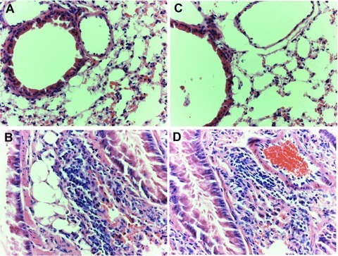 Histological findings of lung tissues with peripheral airways (haematoxylin and eosin, ×400 origin) from WT mice with PBS (A) or HDM (B) and AQP5 KO mice with PBS (C) or HDM (D) after the intranasal challenges, once a day, 5 days a week for 5 weeks.
