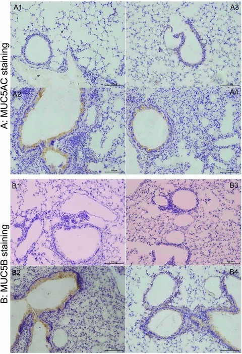 The photomicrographs of MUC5AC-stained (A) and MUC5B-stained sections (B) of airways from WT mice with PBS (A-1, B-1) or HDM (A-2, B-2) and AQP5 KO mice with PBS (A-3, B-3) or HDM (A-4, B-4) after intranasal challenges, once a day, 5 days a week for 5 weeks. Mucin 5AC (H-160, SC-20118, Lot: B0403; Santa Cruz Biotechnology). Rabbit polyclonal IgG, mucin 5B (5B#19–2E, SC-21768 Lot: L2203, Santa Cruz Biotechnology) mouse monoclonal IgG. Mucin 5AC Ab-1 (45M1, MS-145-PO Lot: 145; NeoMarkers, Fremont, CA, USA) have been used as controls for the specific monoclonal antibodies.