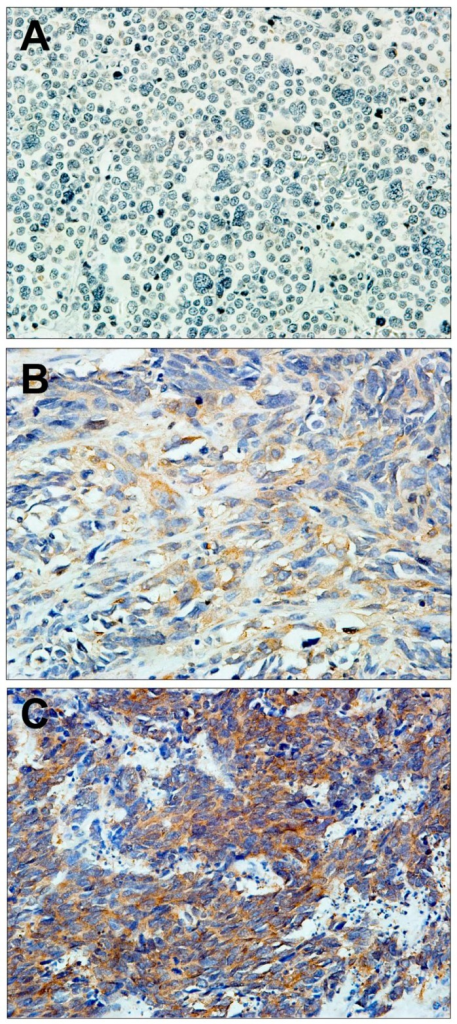 Representative serial sections of PESCC (Primary esophageal small cell carcinoma) immunohistochemiscal staining for PAK1: (A) negative staining; (B) weak staining; and (C) strong staining. Magnification: 400×.