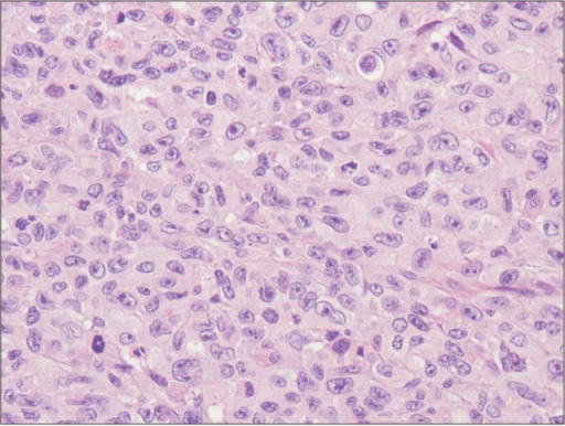 The tumor was composed of ovoid to anaplastic cells forming solid sheets (H&E, ×400).