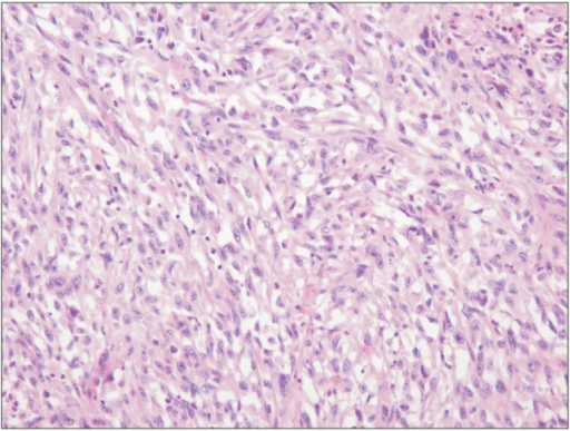 The tumor displayed spindle tumor cells forming an interlacing fascicular arrangement (H&E, ×200).