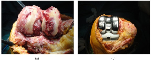 Degenerative arthritis and torn cruciate ligaments were seen and a rotating hinged knee prosthesis was applied.