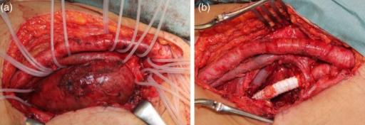 a) the common femoral artery, superficial femoral arte | open-i, Cephalic Vein