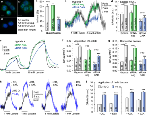 Knockdown of CAIX decreases lactate transport in cancer cells.(a) Antibody staining for CAIX (green) in MCF-7 cells, kept under hypoxic conditions. Hypoxic cells either remained untreated (a1), mock-transfected with non-targeting negative control siRNA (a2) or transfected with siRNA against CAIX (a3). Nuclei are stained with Hoechst (blue). (b) Quantification of the fluorescent signal for CAIX as shown in (a). (c) Original recording of the relative change in intracellular lactate concentration in MCF-7 cells kept under hypoxic conditions during application of 1 and 3 mM lactate. Cells were either untreated (black trace), mock-transfected with non-targeting negative control siRNA (green trace) or transfected with siRNA against CAIX (blue trace). (d) Rate of change in lactate level during application of 1 and 3 mM lactate in hypoxic MCF-7 cells, either untreated (gray bars), mock-transfected with non-targeting negative control siRNA (green bars) or transfected with siRNA against CAIX (blue bars). Knock-down of CAIX induced a significant decrease in lactate flux. (e) Original recordings of changes in pHi in hypoxic MCF-7 cells, either untreated (control, gray traces), mock-transfected with non-targeting negative control siRNA (green traces) or transfected with siRNA against CAIX (blue traces). (f,g) Rate of change in pHi, as induced by application (f) and removal (g) of lactate, respectively. (h) Original recordings of the relative change in intracellular lactate concentration in MCF-7 cells kept under normoxic (blue traces) or hypoxic (red traces) conditions during application of lactate in the presence and absence of 5% CO2/15 mM HCO3− and 30 μM EZA, respectively. (i) Rate of change in intracellular lactate concentration in MCF-7 cells under normoxic and hypoxic conditions, respectively, as induced by application of 1 mM lactate in the absence and presence of 5% CO2/15 mM HCO3− and 30 μM EZA, respectively. Hypoxia induces a significant increase in lactate flux both in the absence and in the presence of CO2/HCO3− and EZA. Knockdown of CAIX induced a significant decrease in the rate of change in pHi, both during addition and removal of lactate. Data are represented as mean ± SEM.