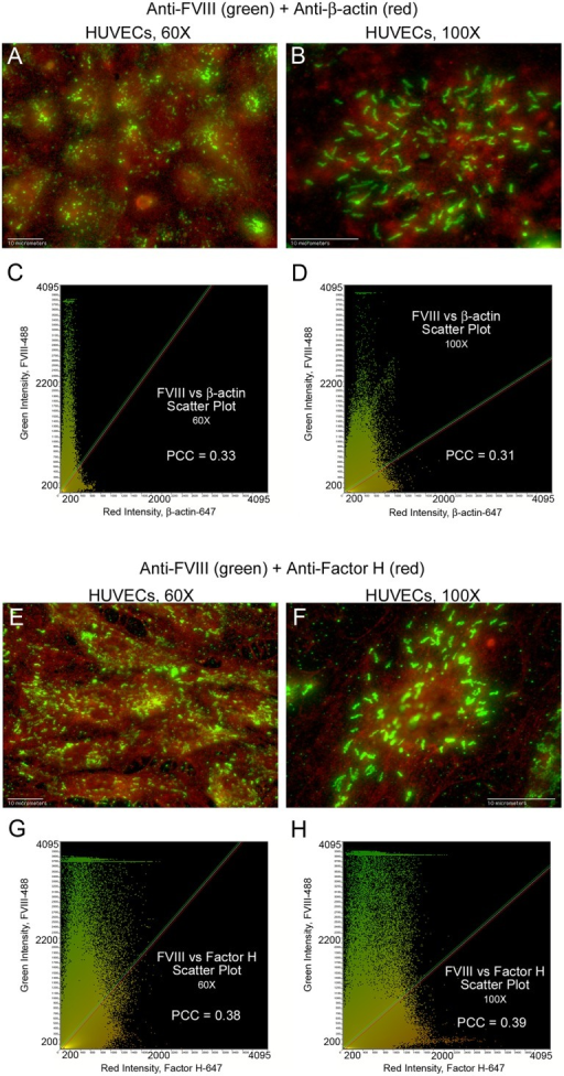 FVIII in HUVEC WPBs does not overlap with β-actin or Factor H.HUVECs were fixed and treated with Triton-X prior to staining with mouse monoclonal anti-FVIII plus donkey anti-mouse IgG AF-488 (green). This was followed by staining either with goat anti-β-actin plus chicken anti-goat IgG AF-647 (red) or with goat anti-Factor H plus chicken anti-goat IgG AF-647 (red). Merged images and the corresponding intensity scatter plots are: (A and C) FVIII and β-actin at 60×, N = 4; (B and D) FVIII and β-actin at 100×, N = 4; (E and G) FVIII and Factor H at 60×, N = 3; and (F and H) FVIII and Factor H at 100×, N = 3. Values for Pearson's correlation coefficient (PCC) are on each scatter plot.
