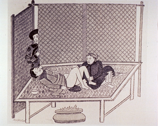 <p>A woman is lying on an elevated mat under which burns a fire in a large bowl; two attendants are nearby.</p>