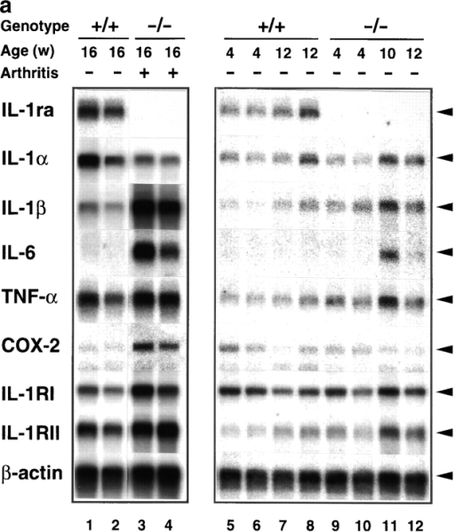Augmentation of IL-1β, IL-6, TNF-α, COX-2, and IL-1R mRNA expression in the joints of BALB/cA IL-1ra−/− mice. Total RNA was isolated from the joints, and poly (A)+ RNA was purified. Expression of the genes for IL-1ra, IL-1α, IL-1β, IL-6, TNF-α, IL-1RI, IL-1RII, and COX-2 was examined by Northern blot hybridization analysis. (a) Lanes 1 and 2 and 5–8, IL-1ra+/+ mice; lanes 3 and 4 and 9–12, IL-1ra−/− mice. Lanes 1 and 2 and 5–12, nonarthritic mice; lanes 3 and 4, arthritic mice (severity score = 6). Ages of the mice are indicated at top. The results were reproducible in three independent experiments. (b) Densitometric analysis of mRNA expression levels. The radioactivity for a band shown in panel a was measured by a BAS 2000 system and normalized by that of β-actin; the radioactivities of the mutant mice relative to those of age-matched wild-type mice are shown. White bar, wild-type mouse; black bar, arthritic IL-1ra−/− mouse; gray bar, nonarthritic IL-1ra−/− mouse. w, wk.
