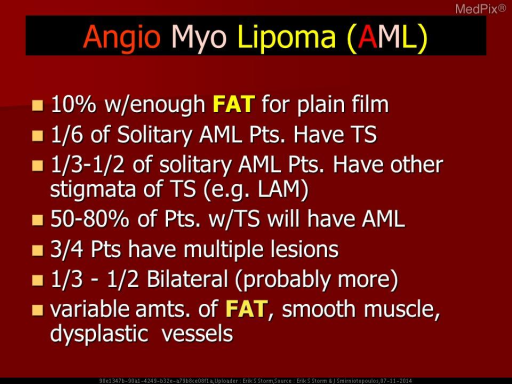 Angiomyolipoma usually have characteristic imaging features of sharply defined hyperechoic on US; and, fatty attenuation on CT.