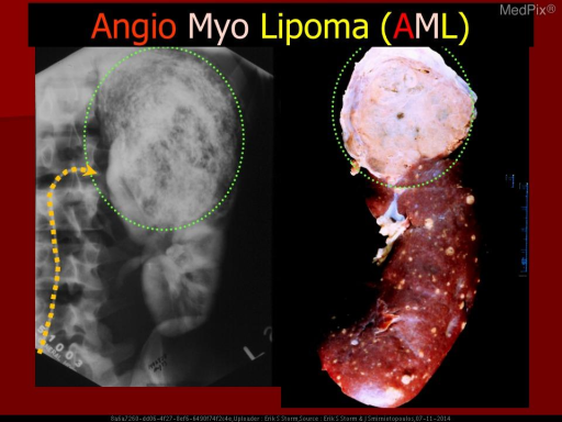 "Selective left renal arteriogram shows the characteristic ""whorled nephogram"" from the abnormal vessels - common in large AML.  The corresponding gross specimen shows a large upper-pole AML - but innumerable smaller yellowish lesions."
