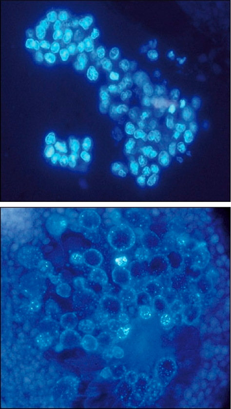HeLa cell nuclei (top) appear quite different after being reprogrammed inside a frog egg (bottom).