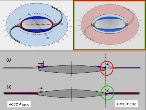Schematic detailing capsular interplay with ACCC smaller (left) and larger than optic (right). Creating an ACCC larger than the optic precludes contact and thus fibrosis at the haptic–optic junction (green circle), but may retract a scarcely overlapping PCCC and thus expose optic rim