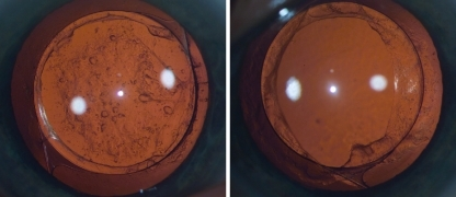 Right. Two years after POBH: optic within capsule edges completely clear, posterior capsule overlying optic shows thin layer of regeneratory LEC proliferation with scarce small pearls. Left. Contralateral eye with in-the-bag placed IOL: regeneratory LEC proliferation on posterior capsule behind optic with abundant large pearls