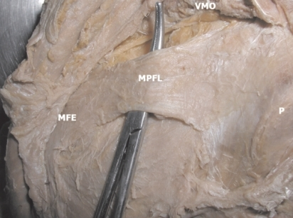 The Medial Patellofemoral Ligament Mpfl Medial Patel Open I