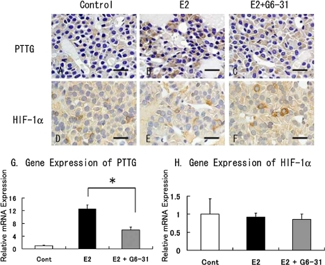 Immunohistochemistry of pituitary PRLoma in F344 rats. Staining of PTTG (A to C) and HIF-1α (D to F). Counterstaining was done with hematoxylin. Bar=20 µm. G and H: Gene expression of PTTG (G) and HIF-1α (H) in pituitary PRLoma in F344 rats. The columns show the mean value of the relative expression of PTTG and HIF-1α compared with GAPDH as an endogenous control. *: P<0.05, E2 versus E2+G6-31 group.